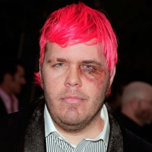 Perez-hilton-black-eye-300x300