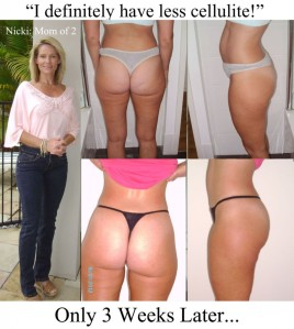 nickis-proof-of-cellulite-reduction-after-3-weeks-917x1024